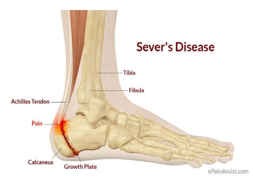foot-ankle-clinic-coquitlam