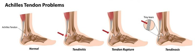 Achilles-Tendon-Problem-Coquitlam-Podiatry