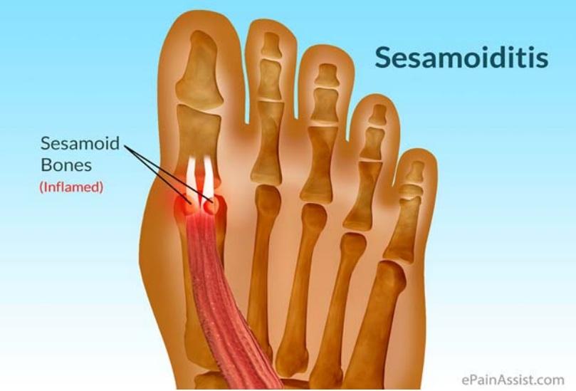 Sesamoiditis-coquitlam-podiatry