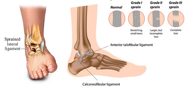 ankle-sprains-coquitlam-podiatry.