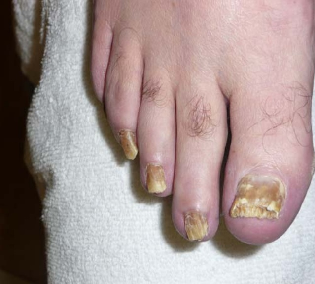 Fungal Toenails Coquitlam Podiatry Foot And Ankle Clinic