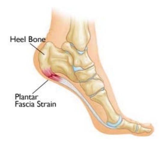 heel-pain-coquitlam-podiatry