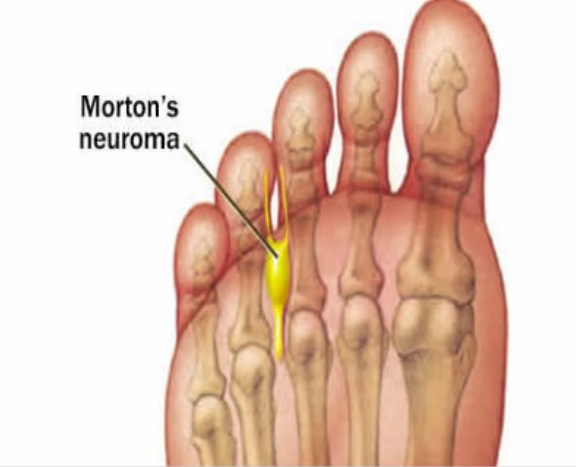 neuroma-coquitlam-podiatry